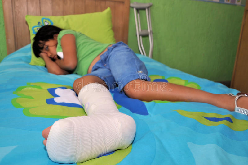 σπασμένο πόδι κοριτσιών στοκ φωτογραφία με δικαίωμα ελεύθερης χρήσης