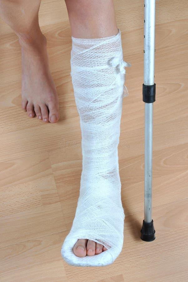 σπασμένο πόδι στοκ εικόνα με δικαίωμα ελεύθερης χρήσης