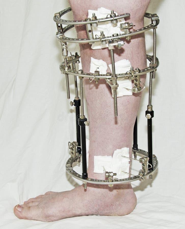 Σπασμένο πόδι στοκ φωτογραφίες με δικαίωμα ελεύθερης χρήσης
