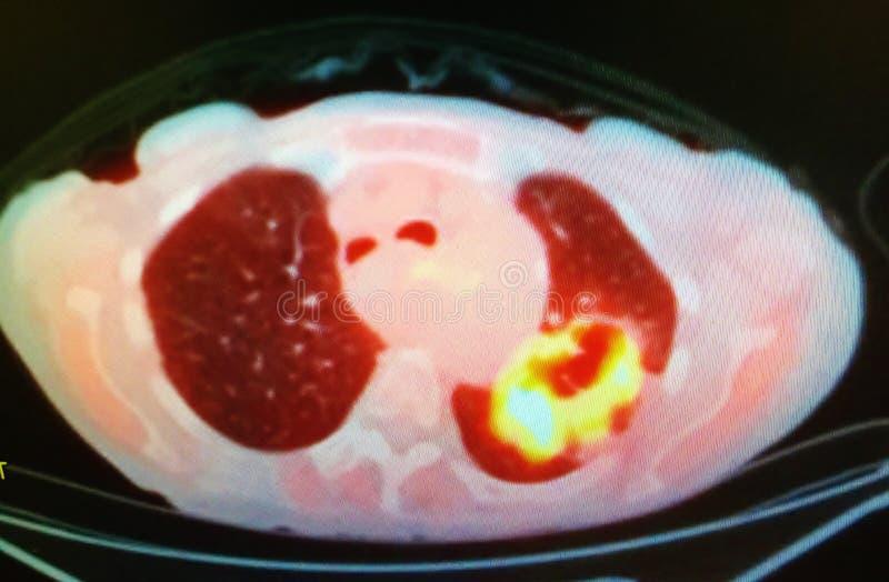 Σπηλαιώδης μαζική μοχθηρία πνευμόνων ανίχνευσης CT της Pet στοκ εικόνα με δικαίωμα ελεύθερης χρήσης