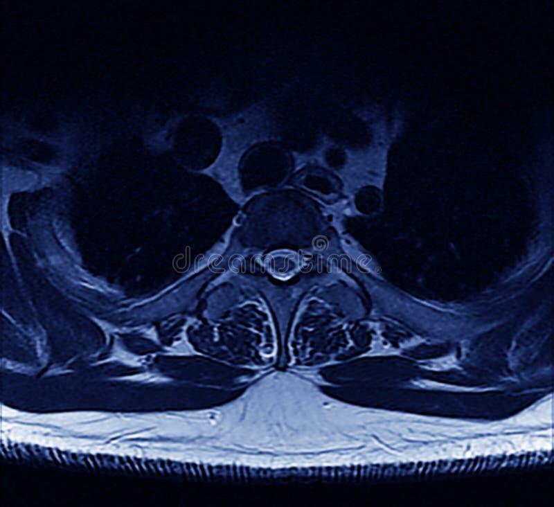 σπονδυλική στήλη mri στοκ φωτογραφία με δικαίωμα ελεύθερης χρήσης