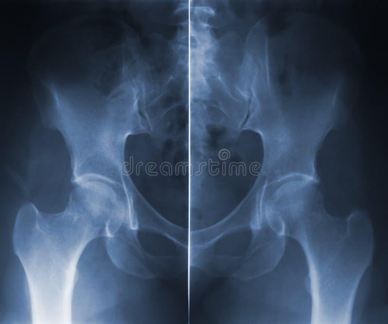 Σπονδυλική στήλη ισχίων Skiagram στοκ εικόνες με δικαίωμα ελεύθερης χρήσης