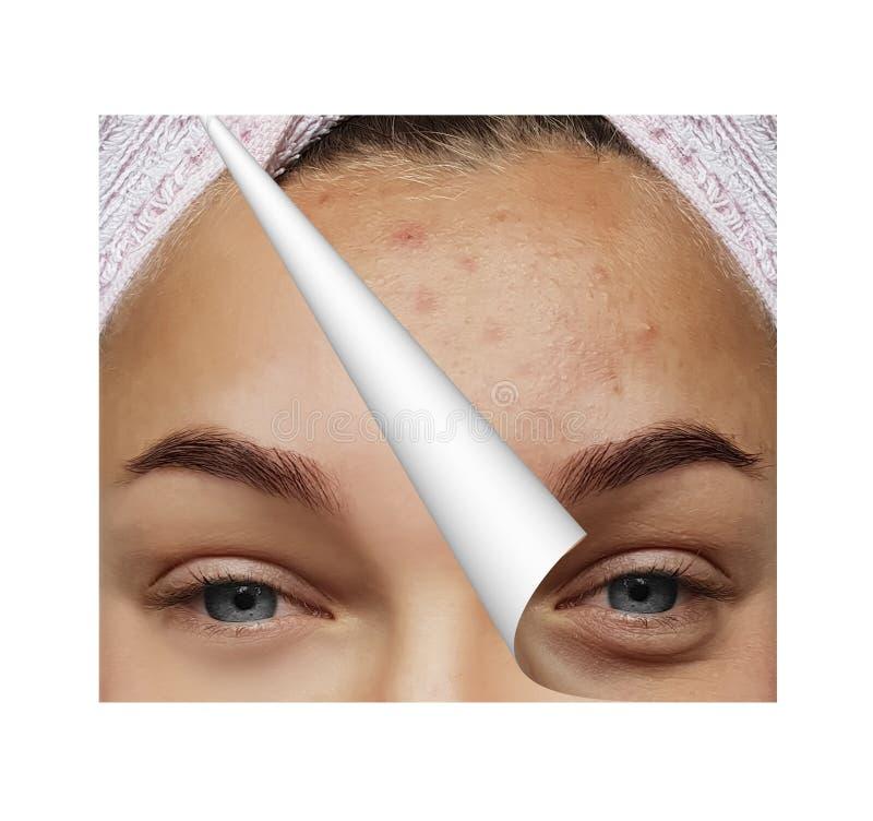Σπυράκια κοριτσιών, τσάντες κάτω από τα μάτια πριν και μετά από τις διαδικασίες, κολάζ στοκ εικόνα