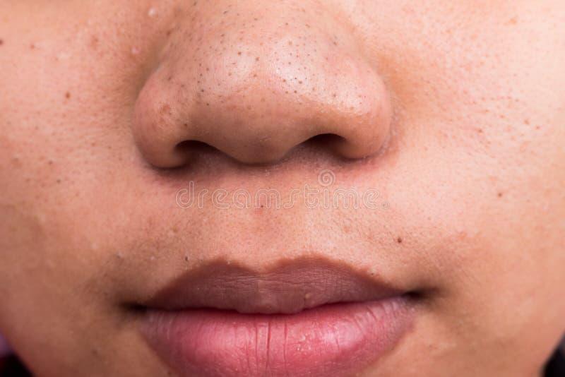 Σπυράκια σπυρακιών στη μύτη και τα χείλια στοκ φωτογραφία με δικαίωμα ελεύθερης χρήσης