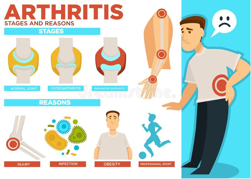 Στάδια αρθρίτιδας και λόγοι του διανύσματος αφισών ασθενειών διανυσματική απεικόνιση