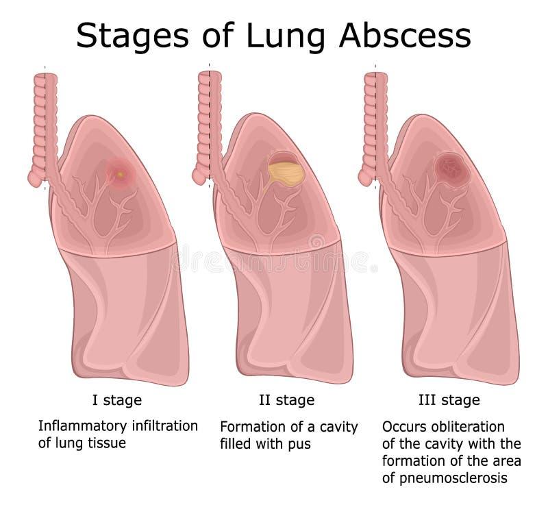 Στάδια του αποστήματος πνευμόνων διανυσματική απεικόνιση