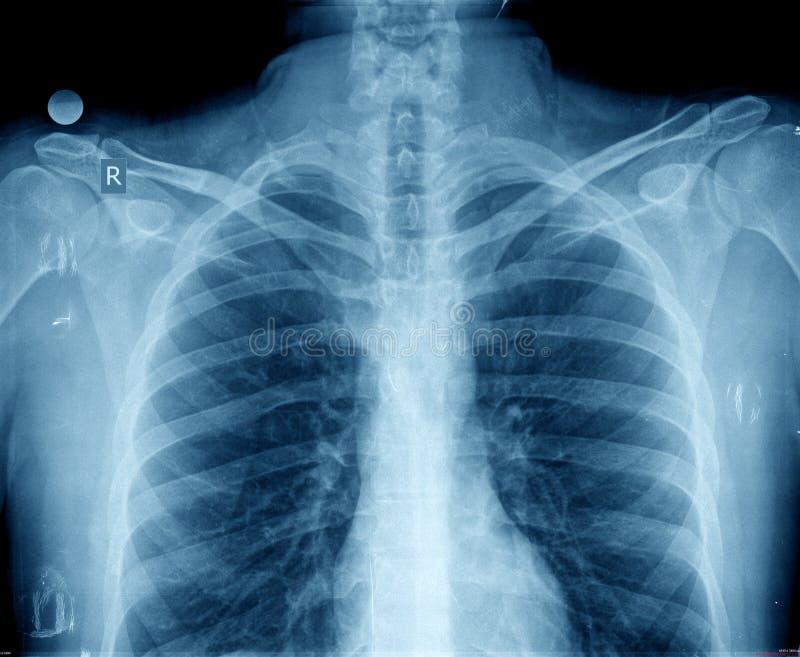 Στήθος ακτίνας X στοκ φωτογραφίες με δικαίωμα ελεύθερης χρήσης