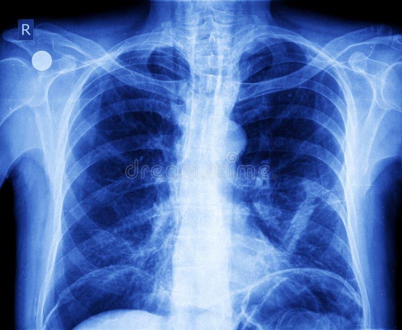 Στήθος ακτίνας X στοκ φωτογραφία