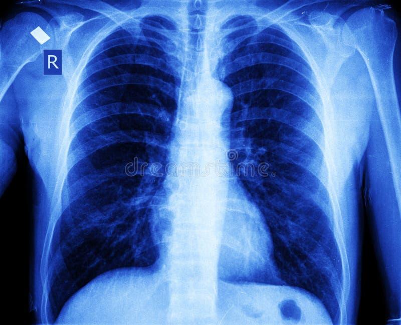 Στήθος ακτίνας X στοκ φωτογραφία με δικαίωμα ελεύθερης χρήσης