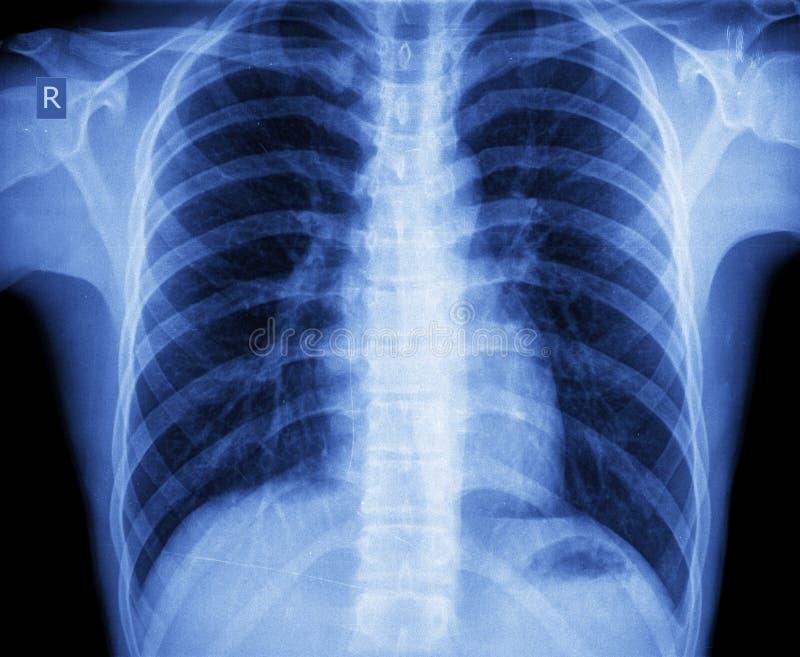 Στήθος ακτίνας X στοκ εικόνες