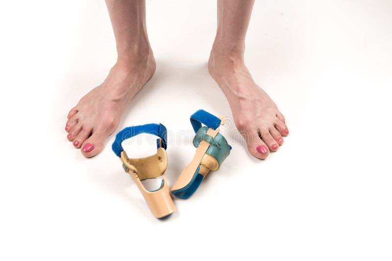 Σταθεροποιώντας όρθωση για τη διόρθωση του μεγάλου toe στα πόδια γυναικών όταν hallux απομόνωσε το valgus, 2 πόδια, κινηματογράφη στοκ φωτογραφία