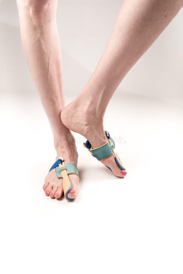Σταθεροποιώντας όρθωση για τη διόρθωση του μεγάλου toe στα πόδια γυναικών όταν hallux απομόνωσε το valgus, 2 πόδια, κινηματογράφη στοκ φωτογραφίες