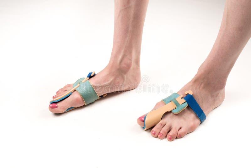 Σταθεροποιώντας όρθωση για τη διόρθωση του μεγάλου toe στα πόδια γυναικών όταν hallux απομόνωσε το valgus, 2 πόδια, κινηματογράφη στοκ εικόνες
