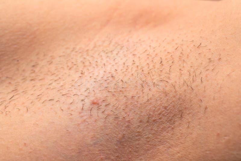 Στενός επάνω μασχαλών Unshaved στοκ φωτογραφία με δικαίωμα ελεύθερης χρήσης