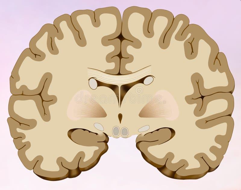 Στεφανιαία περικοπή του ανθρώπινου εγκεφάλου στον οποίο μπορούμε να δούμε τον εγκέφαλο που αποτελείται από δύο μισά, το ένα δικαί ελεύθερη απεικόνιση δικαιώματος