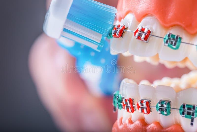 Στηρίγματα και οδοντόβουρτσα δοντιών κινηματογραφήσεων σε πρώτο πλάνο για παράδειγμα του toothbrus στοκ φωτογραφία