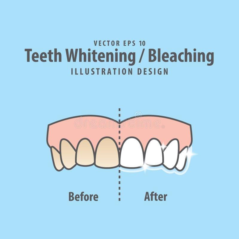 Συγκρίνετε τα ανώτερα δόντια λευκαίνω-που λευκαίνουν πριν και μετά από illustr ελεύθερη απεικόνιση δικαιώματος