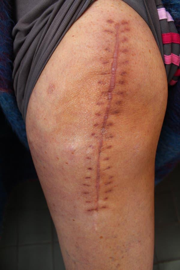 Συνολική αντικατάσταση γονάτων, χειρουργική επέμβαση γονάτων στοκ εικόνα