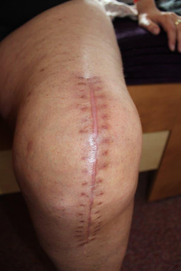 Συνολική αντικατάσταση γονάτων, χειρουργική επέμβαση γονάτων στοκ εικόνες