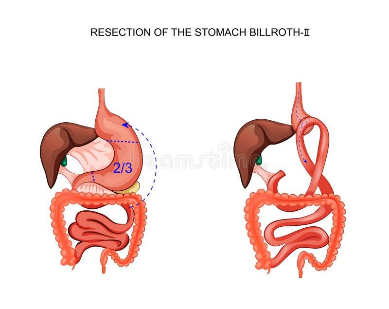 Σχέδιο της οπισθοτομίας του στομαχιού Billroth 2 ελεύθερη απεικόνιση δικαιώματος