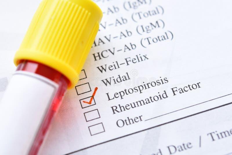 Σωλήνας δειγμάτων αίματος για Leptospirosis τη δοκιμή στοκ εικόνες