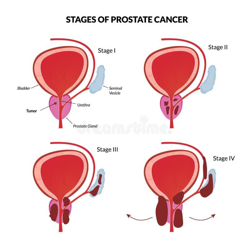 Τέσσερα στάδια του προστατικού καρκίνου ελεύθερη απεικόνιση δικαιώματος