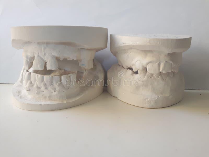 Τέχνη οδοντιάτρων στοκ εικόνες