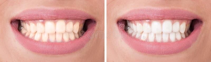 Τέλειο χαμόγελο γυναικών πριν και μετά από τη λεύκανση ή τη λεύκανση στοκ εικόνες