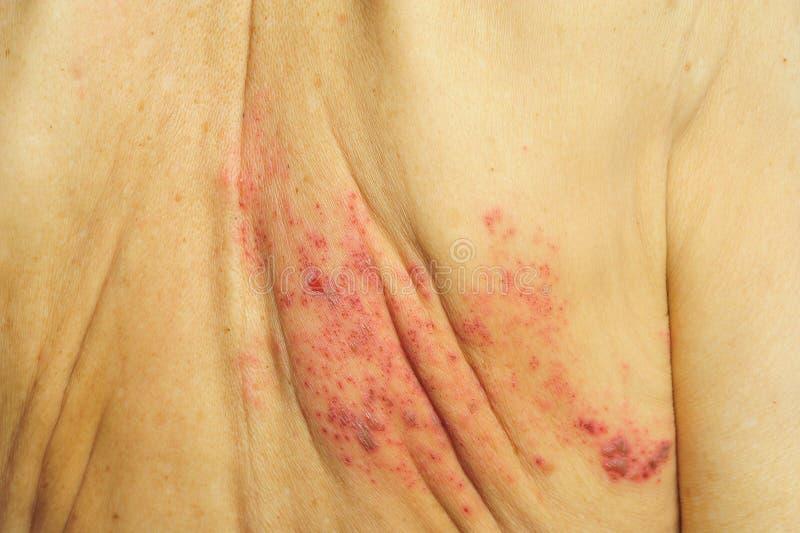 Τα βότσαλα είναι μια προερχόμενη από ιό μόλυνση που προκαλεί μια επίπονη αναφυλαξία στοκ εικόνες