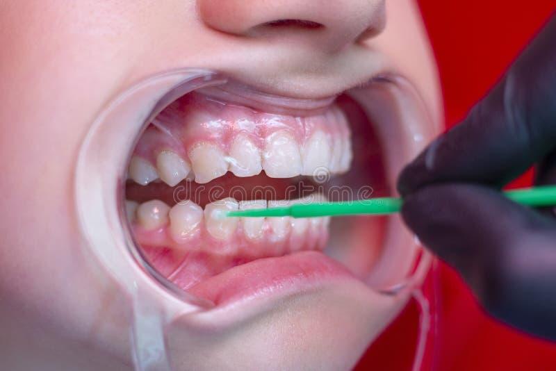 Τα δόντια που λευκαίνουν το πρόσωπο διαδικασίας λευκαίνουν τα δόντια στο στοματικό αποσυμπιεστή στοκ φωτογραφίες