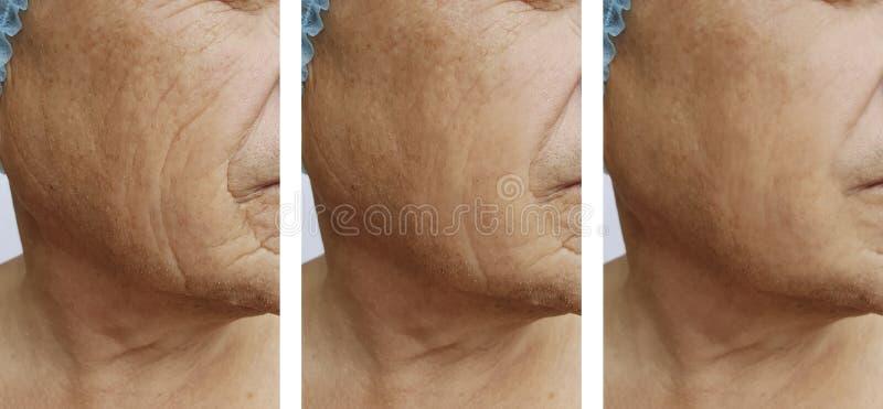 Τα ηλικιωμένα άτομα ` s ζαρώνουν την υγεία εγχύσεων ιατρικής αφαίρεσης στο πρόσωπο πριν μετά από τις διαδικασίες στοκ εικόνα