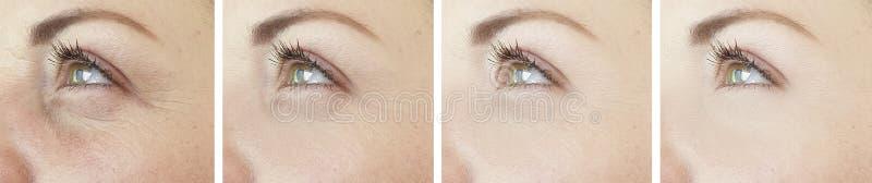 Τα μάτια γυναικών ζαρώνουν cosmetology αναγέννησης κολάζ τη διαφορά πριν μετά από την επεξεργασία στοκ φωτογραφία