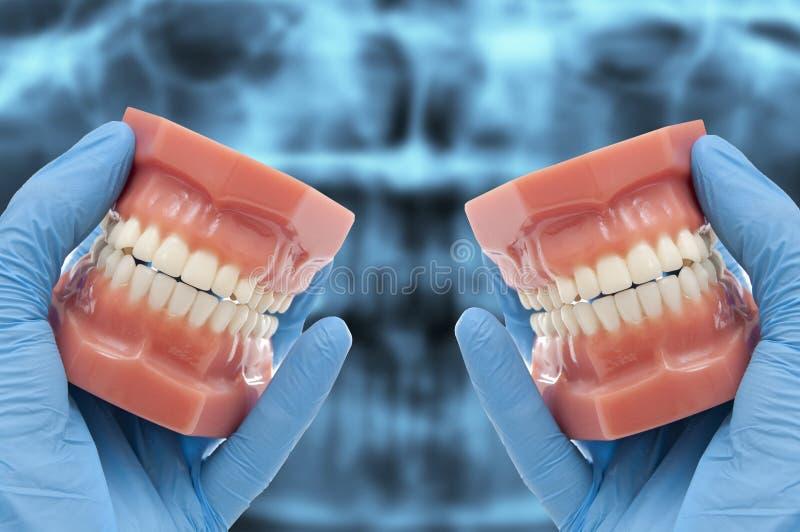 Τα χέρια οδοντιάτρων παρουσιάζουν οδοντικό πρότυπο χαμογελώντας πέρα από την ακτίνα X στοκ εικόνες