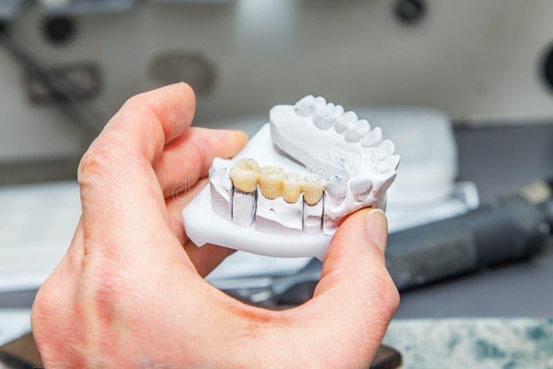 Τεχνικοί πυροβολισμοί σε ένα οδοντικό prothetic εργαστήριο στοκ φωτογραφία με δικαίωμα ελεύθερης χρήσης
