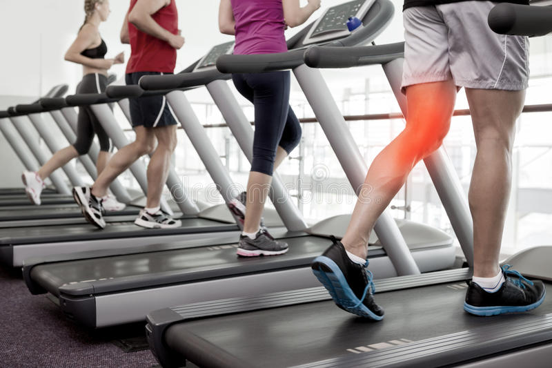 Τονισμένο γόνατο του ατόμου treadmill στοκ φωτογραφία με δικαίωμα ελεύθερης χρήσης