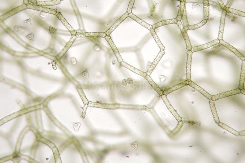 Του γλυκού νερού campanula Vorticella στο reticulatum Hydrodictyon ικανότητας στοκ εικόνες