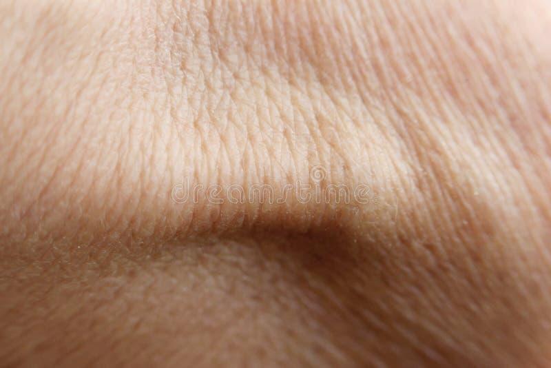 Το δέρμα του πίσω μέρους του ανθρώπινου χεριού με τον τένοντα μεγάλο ψηφιακό flexor κάτω από το δέρμα στοκ εικόνα