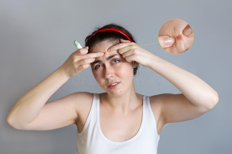 Το έφηβη συμπιέζει τα σπυράκια στο μέτωπό της, κρατώντας ένα μολύβι concealer στο χέρι της Η έννοια cosmetology και του ελέγχου α στοκ φωτογραφία