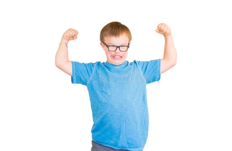 Το αγόρι με κατεβάζει το σύνδρομο λυγίζοντας τους μυς του στοκ εικόνες με δικαίωμα ελεύθερης χρήσης