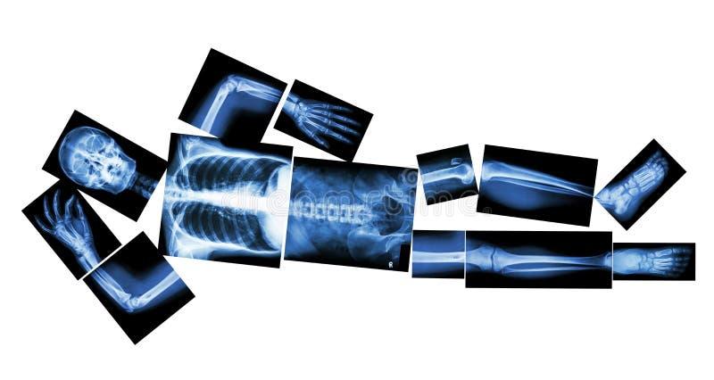 Το ανθρώπινο κόκκαλο κοιμάται (ακτίνα X συνόλων) στοκ φωτογραφία με δικαίωμα ελεύθερης χρήσης