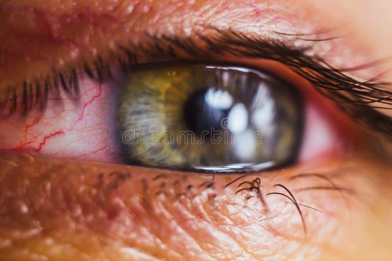 Το ανοικτό ανθρώπινο μάτι με τις φωτεινές κόκκινες αρτηρίες κλείνει επάνω ενόχληση και ερυθρότητα του βολβού του ματιού μαθητές,  στοκ φωτογραφίες