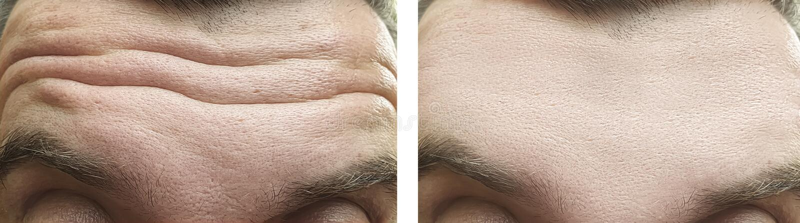 Το αρσενικό πρόσωπο ζαρώνει το μέτωπο πριν και μετά από την επίδραση επεξεργασίας στοκ εικόνες με δικαίωμα ελεύθερης χρήσης