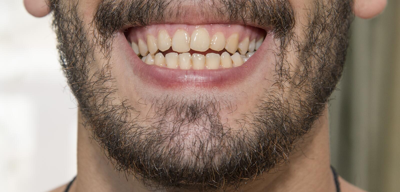 Το γενειοφόρο άτομο χαμογελά, παρουσιάζοντας κακά δόντια στοκ εικόνα