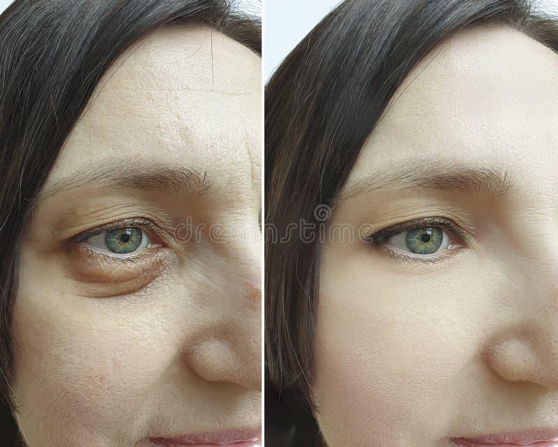 Το θηλυκό μάτι ζαρώνει πριν και μετά από τη διόρθωση επεξεργασίας στοκ φωτογραφίες με δικαίωμα ελεύθερης χρήσης