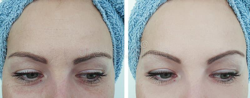 Το θηλυκό μέτωπο ζαρώνει πριν και μετά από τη γήρανση της επεξεργασίας στοκ εικόνα