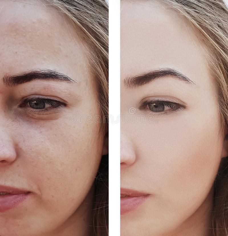 Το κορίτσι ζαρώνει τα μάτια πριν και μετά από τις διαδικασίες αφαίρεσης, τσάντες, bloating στοκ εικόνες