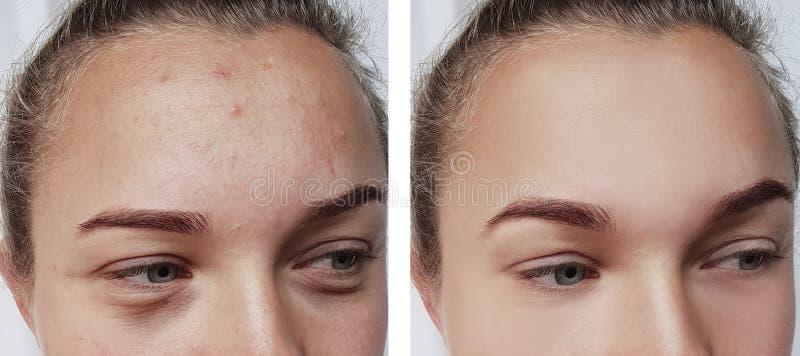 Το κορίτσι ζαρώνει τα μάτια πριν και μετά από τις τσάντες αφαίρεσης δερμάτων επεξεργασιών στοκ φωτογραφίες με δικαίωμα ελεύθερης χρήσης