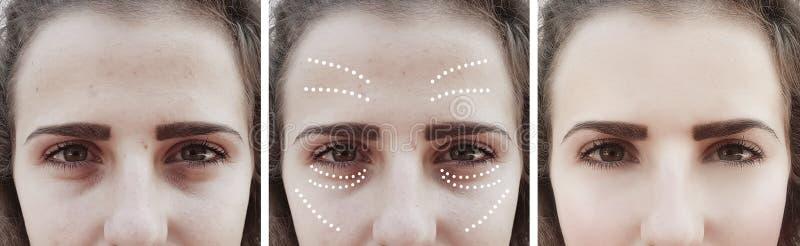 Το κορίτσι ζαρώνει τα μάτια πριν και μετά από bloating τις διαδικασίες θεραπείας επίδρασης θεραπείας αφαίρεσης στοκ εικόνα