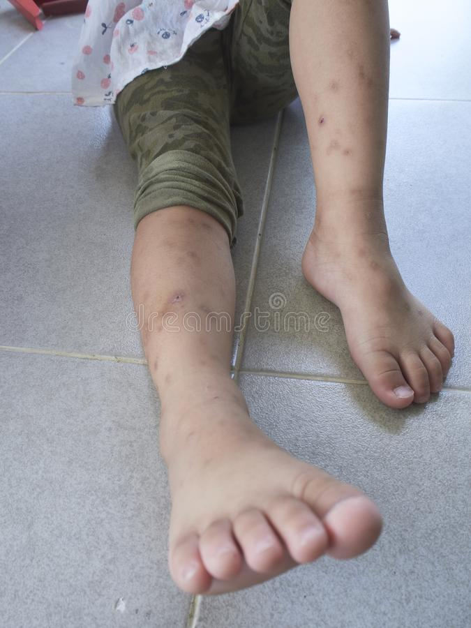 Το κουνούπι δαγκώνει τα πόδια στοκ εικόνα