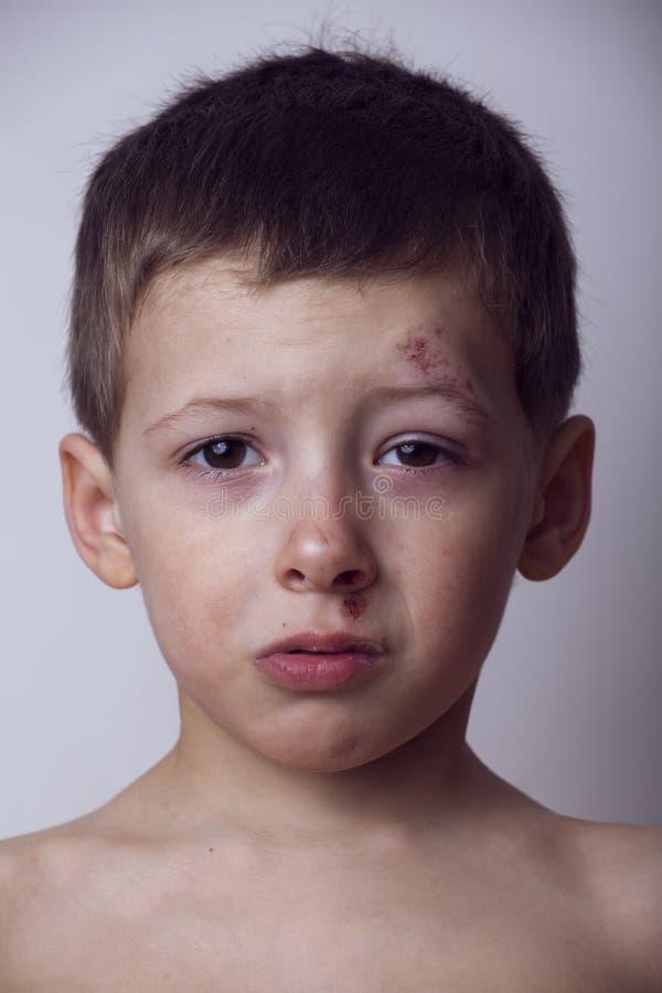 Το μικρό παιδί κτύπησε κοντά επάνω, απομονωμένος στοκ φωτογραφία με δικαίωμα ελεύθερης χρήσης